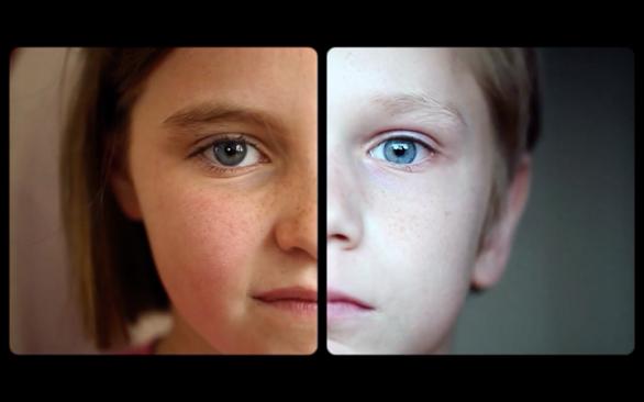 bambini intersex