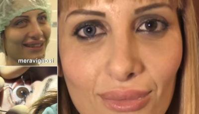 cambiare colori occhi chirurgia