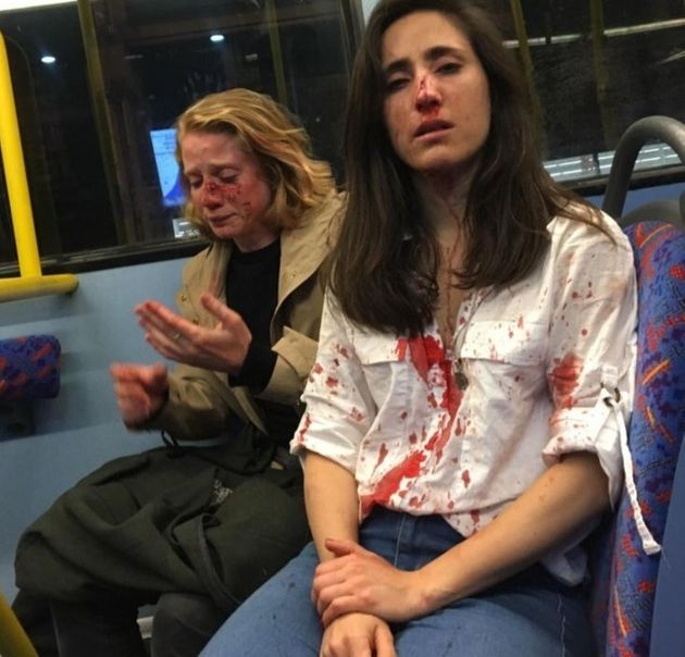 Melania Geymonat, coppia lesbo, londra, picchiata