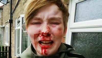 donna picchiata omofobia
